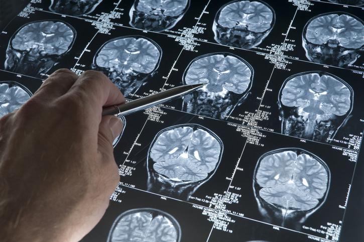 diagnostyka neurologiczna